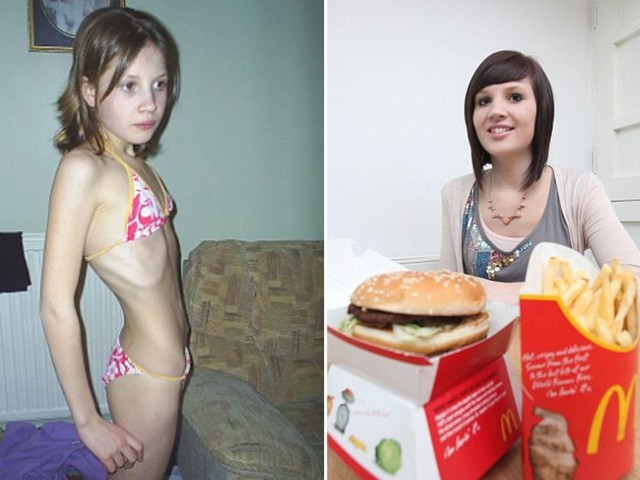 anorexia fast food