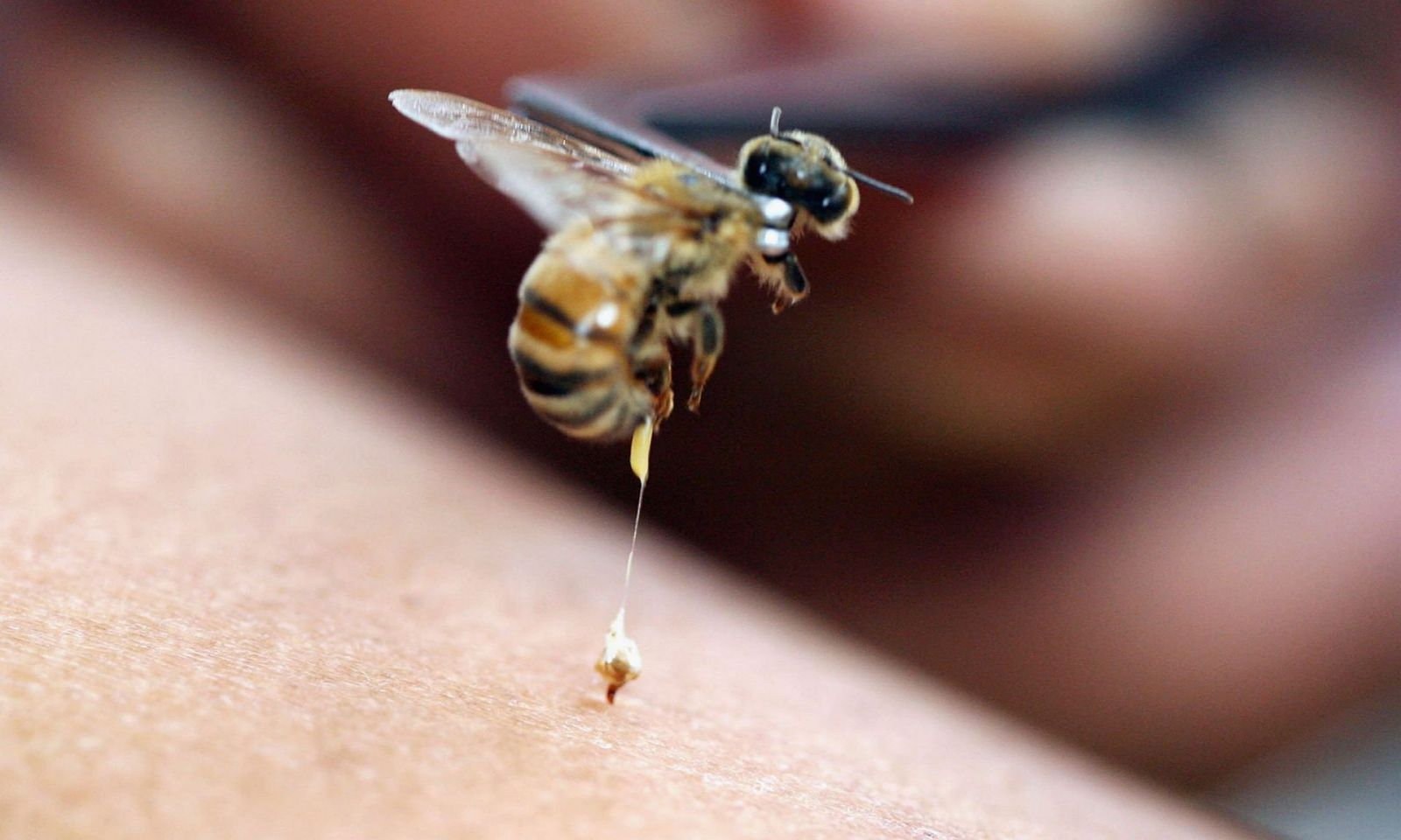 bee sting reactions local systemic and toxic drgreenecom - HD1703×1200