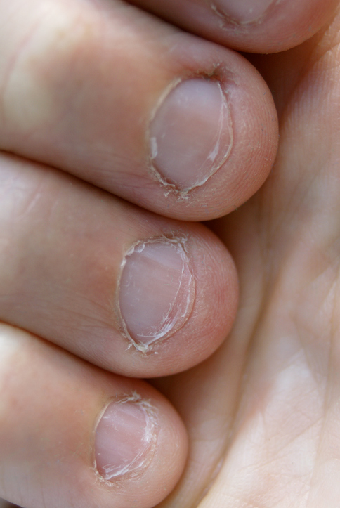 http://www.thinkstockphotos.com/search/#chewing nails/f=CPIHVX/s=DynamicRank