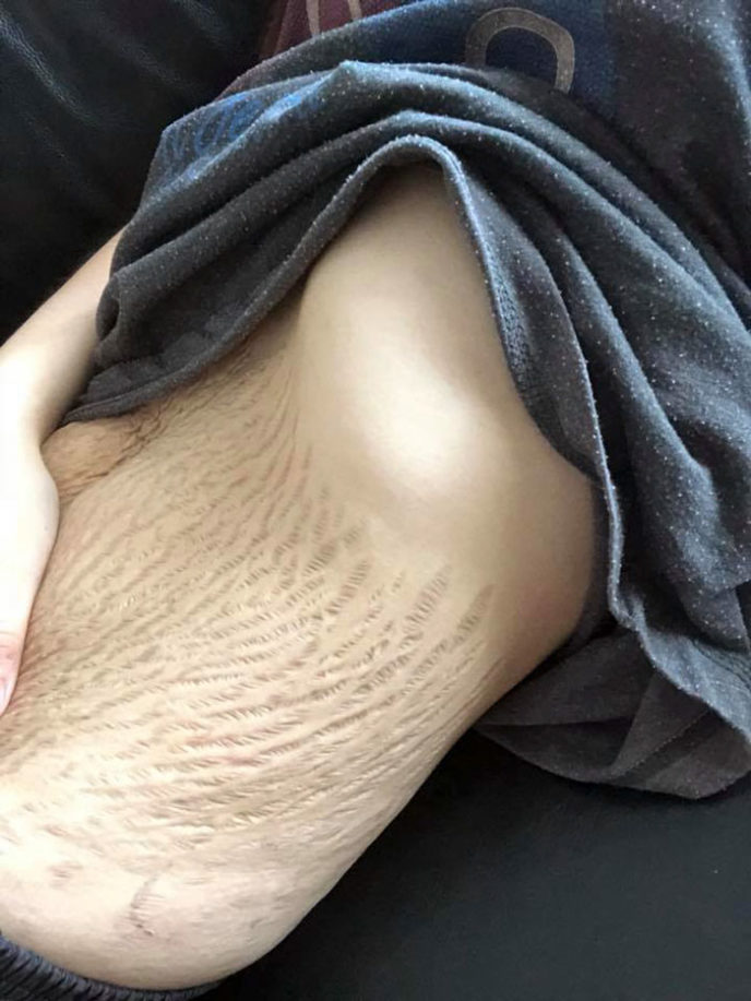 Pregnancy stomach stretchmarks mother of four 23 doreen ching malaysia 2 5ab367c40e1fb__700.jpg
