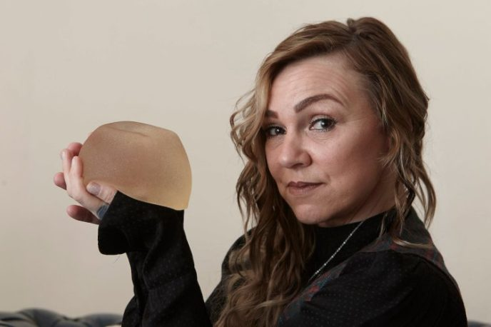 MUM REMOVES HER OWN BREAST IMPLANT