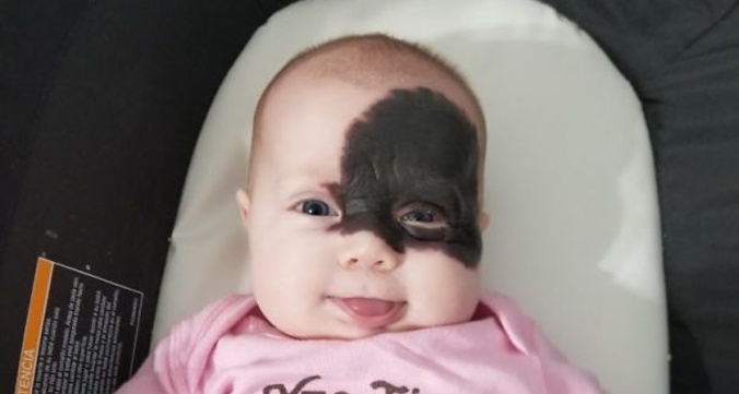 Baby is born with a mark on her face and the parents call her superhero for remembering the mask of batman 5af4e2809bf2d__605.jpg