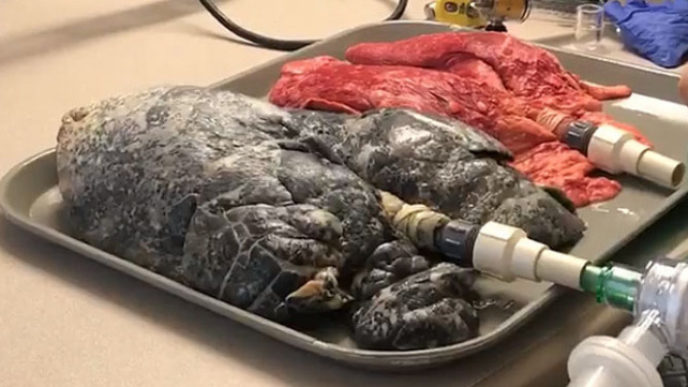 A shocking video shows the internet showing how the lungs of smokers