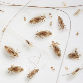 285x285 what head lice look like 2
