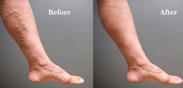 5ways to get rid of varicose veins 620x300.jpg