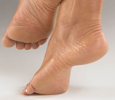 Coleraine footcare clinic cracked heels.jpg