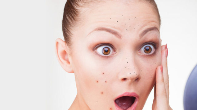 8 homemade face packs for oily acne prone skin with videos.jpg