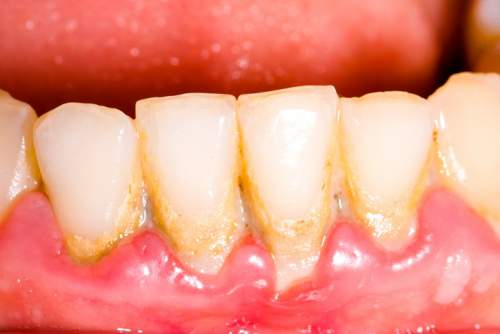 Remove teeth plaque at home naturally 1.jpg
