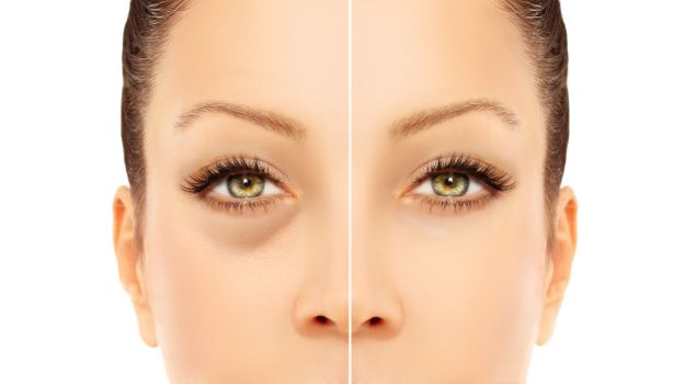 Home remedies dark circles 625_625x350_61442489021.jpg