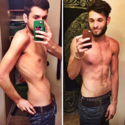 Anorexia recovery before after 106 58f5c5069daea__700.jpg