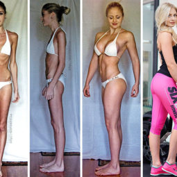 Anorexia recovery before after 111 58f60de428d6d__700 1.jpg