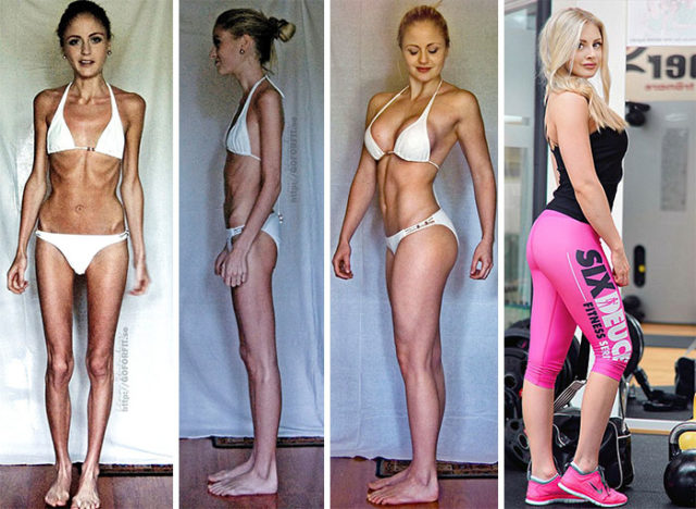 Anorexia recovery before after 111 58f60de428d6d__700.jpg
