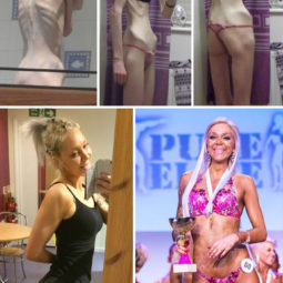 Anorexia recovery before after 114 58f5f40f3b12a__700.jpg