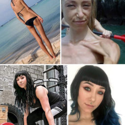Anorexia recovery before after 129 58f71c96a236f__700.jpg