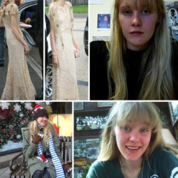 Anorexia recovery before after 212 59030e566c48a__700.jpg
