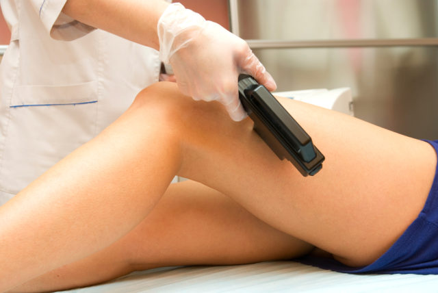 Treatments of varicose veins.jpg
