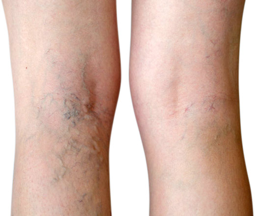 Vein therapy varicose vein treatment spider vein removal dayton oh.jpg
