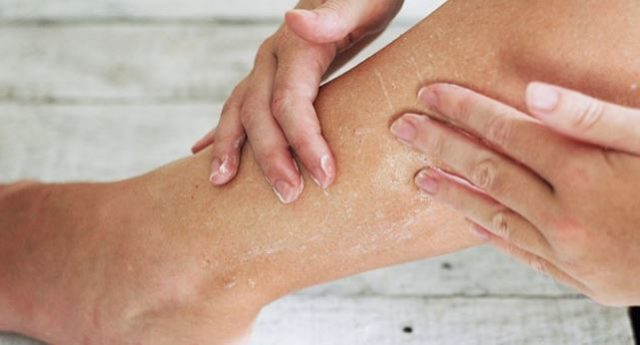 Dry skin on legs causes treatments extremely dry skin itchy scaly.jpg