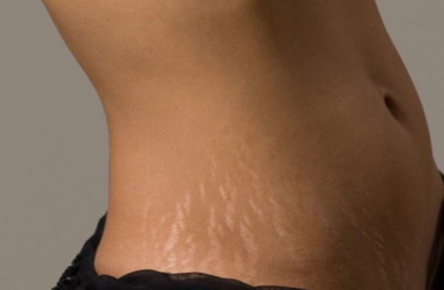 Stretch marks tummy.jpg