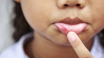 Child with canker sore 825x550.jpg