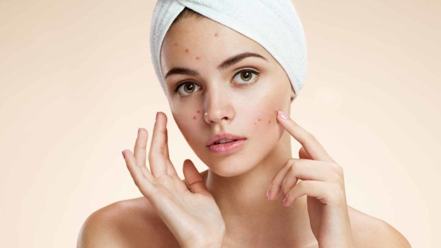Acne natural facial masks diy problem skin.jpg