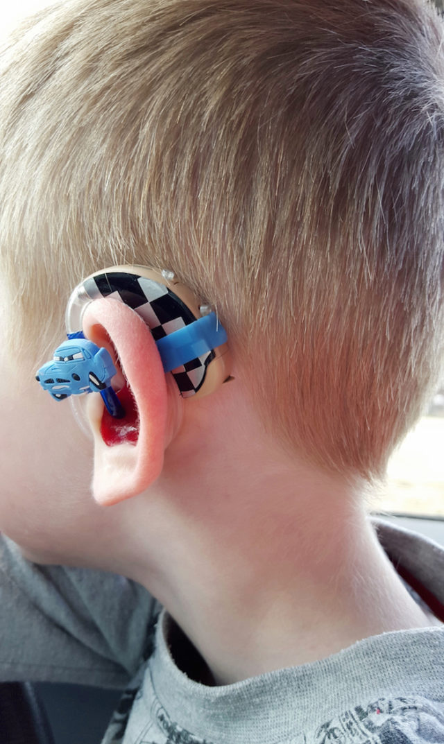 Lugs disney cars hearing aids cochlear implants.jpg