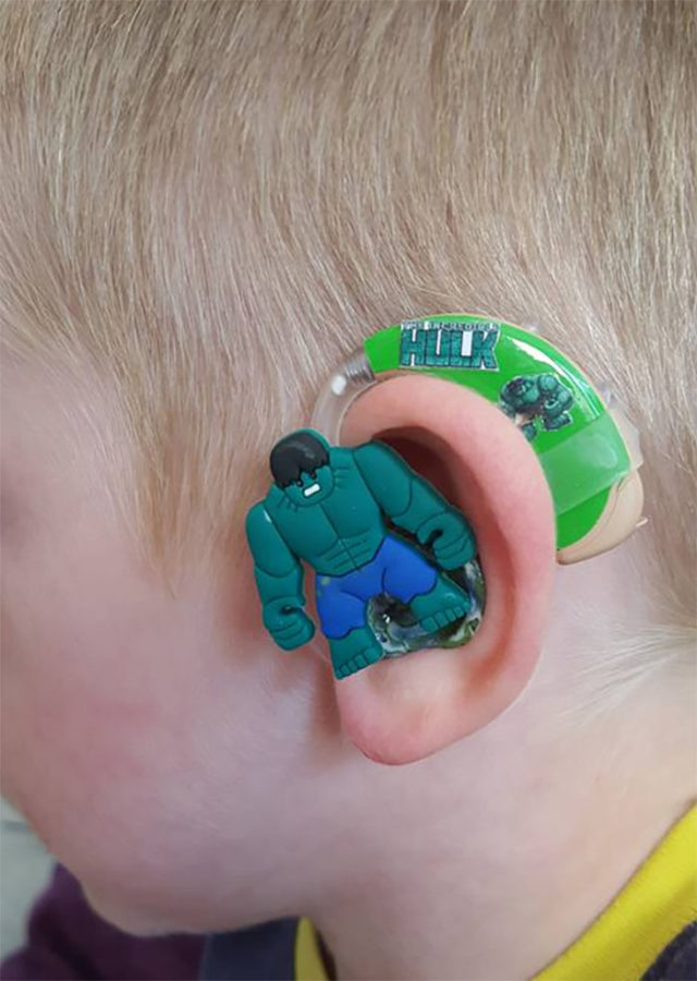 The hulk hearing aid.jpg