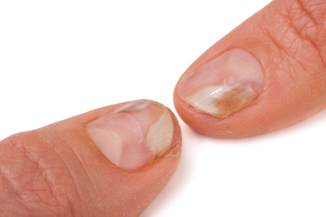 Two fingers of the hand with a fungus on the
