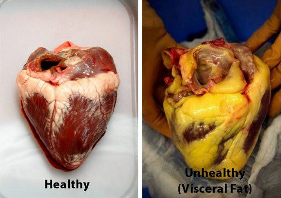 10 foods that will clean your arteries naturally and protect you from heart attacks.jpg