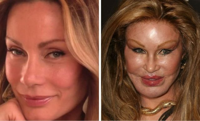20 worst cases of celebrity plastic surgery gone wrong 4.jpg