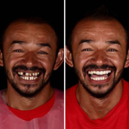 Brazilian dentist travel poor people teeth fix felipe rossi 34 5db94fcb2d758__700.jpg