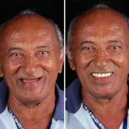 Brazilian dentist travel poor people teeth fix felipe rossi 42 5db953fe93fd6__700.jpg