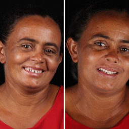 Brazilian dentist travel poor people teeth fix felipe rossi 50 5db955d8c27f3__700.jpg