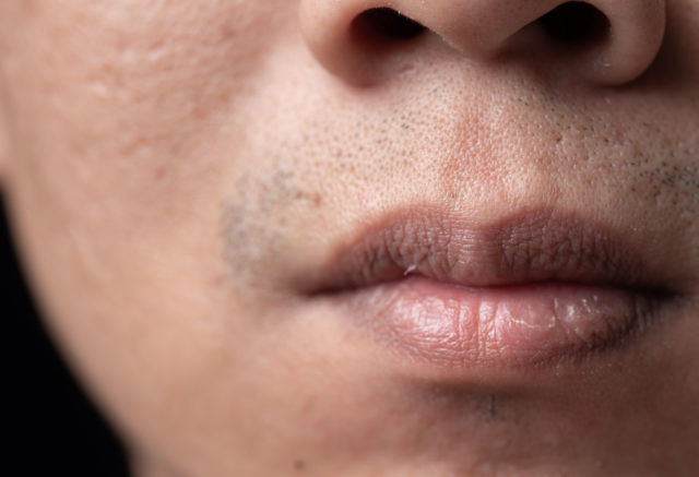 Close up mouth of asian man face with brittle and dry
