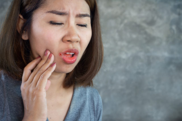 Asian woman having problem with mouth disease dry skin on corner of lips or Angular cheilitis