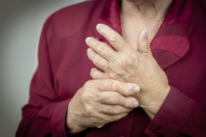 Hands Of Woman Deformed From Rheumatoid Arthritis. Pain