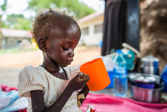 Malnutrition in Juba