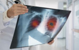 X ray lung cancer