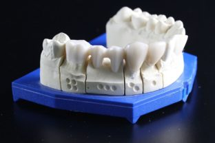 Tooth replacement 759928_1280.jpg