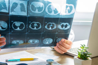 Doctor at appointment inspects and examines ct scan of chest and abdominal cavity. Concept photo on diagnosis of diseases in pulmonology, lung pathology, inflammatory diseases of bronchi, tuberculosis